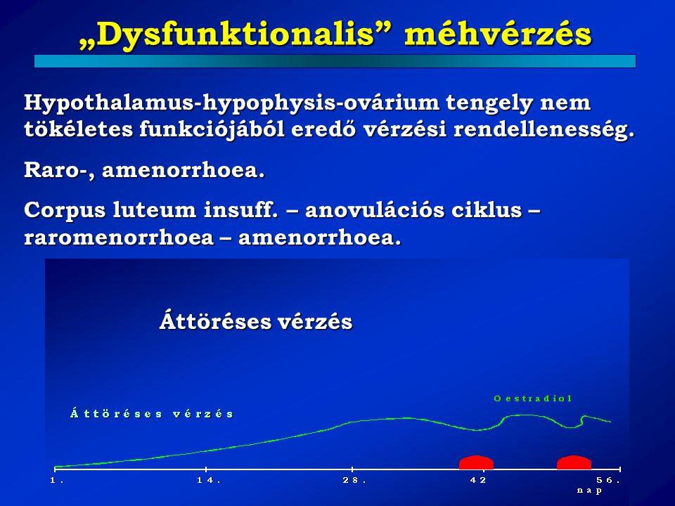 """""""Dysfunktionalis"""" méhvérzés Hypothalamus-hypophysis-ovárium tengely nem tökéletes funkciójából eredő vérzési rendellenesség. Raro-, amenorrhoea. Corpu"""