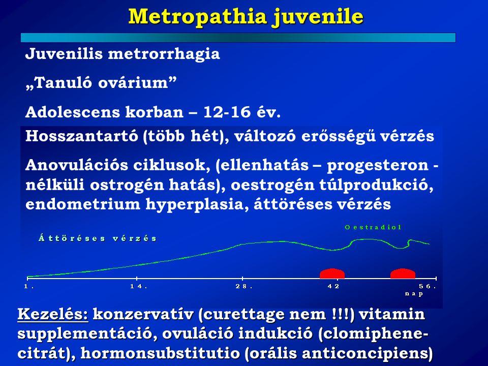 """Metropathia juvenile Juvenilis metrorrhagia """"Tanuló ovárium"""" Adolescens korban – 12-16 év. Hosszantartó (több hét), változó erősségű vérzés Anovuláció"""