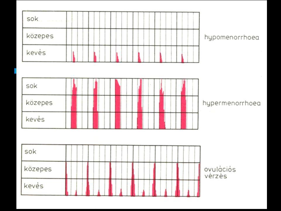 """""""Dysfunktionalis méhvérzés Hypothalamus-hypophysis-ovárium tengely nem tökéletes funkciójából eredő vérzési rendellenesség."""