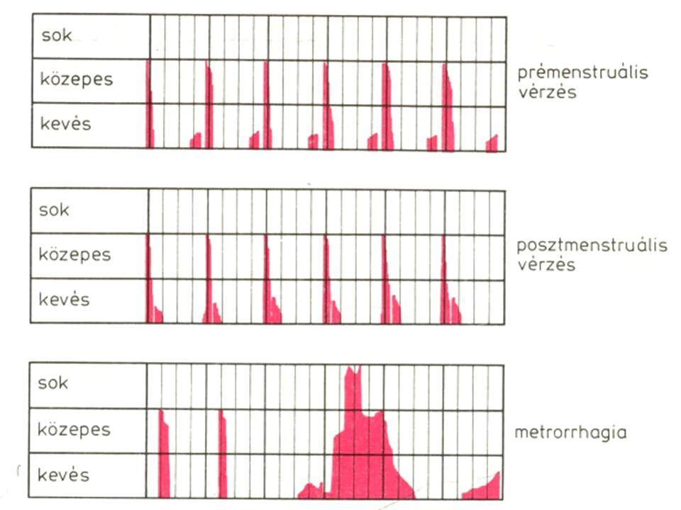 Menstruációs vérzés felosztása 1.nap 14. nap 28. nap Megvonásos vérzés OestradiolProgesteron 1.