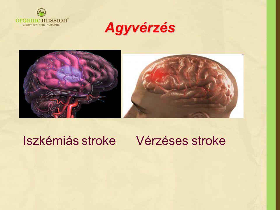 Agyvérzés Iszkémiás stroke Vérzéses stroke