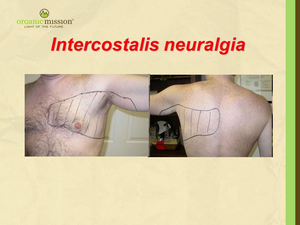Intercostalis neuralgia