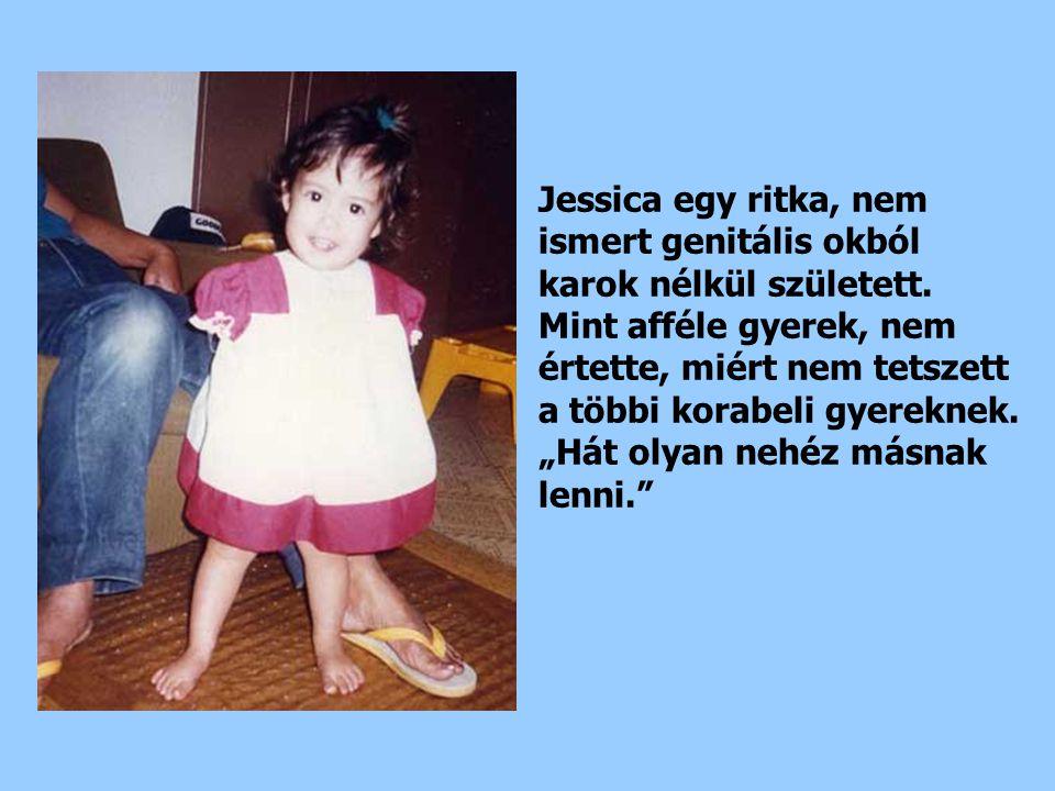 Jessica egy ritka, nem ismert genitális okból karok nélkül született.
