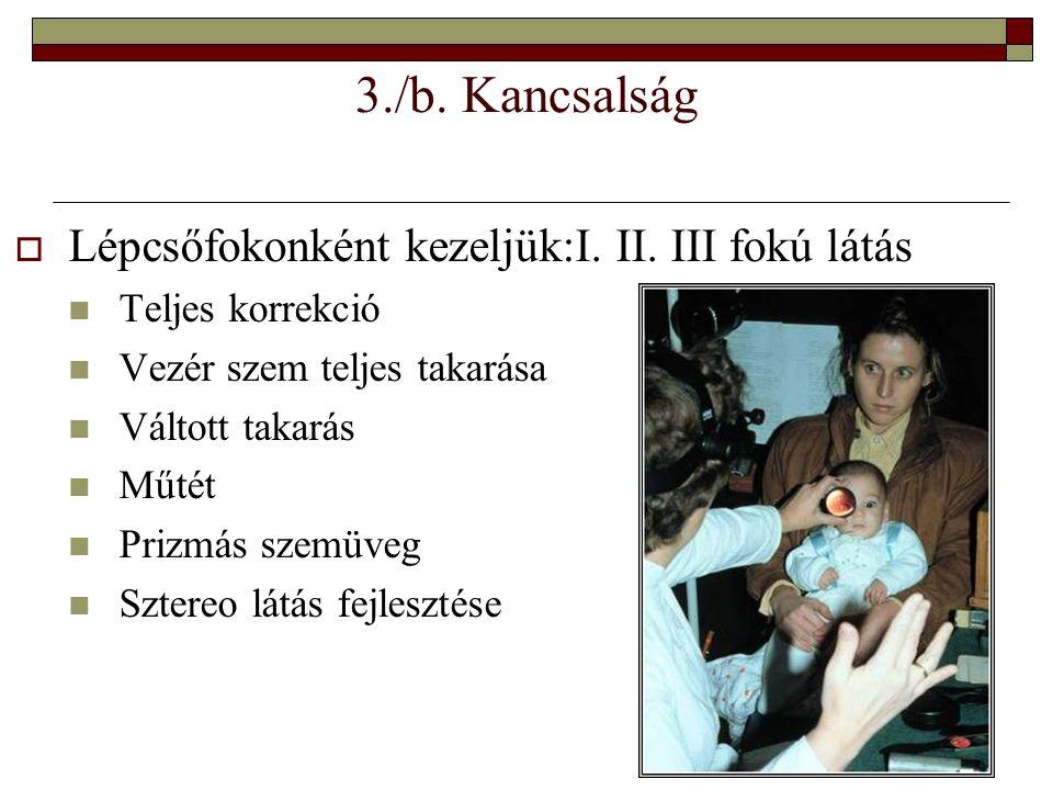 3./b. Kancsalság  Lépcsőfokonként kezeljük:I. II. III fokú látás  Teljes korrekció  Vezér szem teljes takarása  Váltott takarás  Műtét  Prizmás