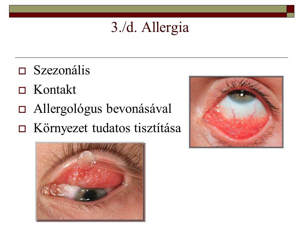 3./d. Allergia  Szezonális  Kontakt  Allergológus bevonásával  Környezet tudatos tisztítása