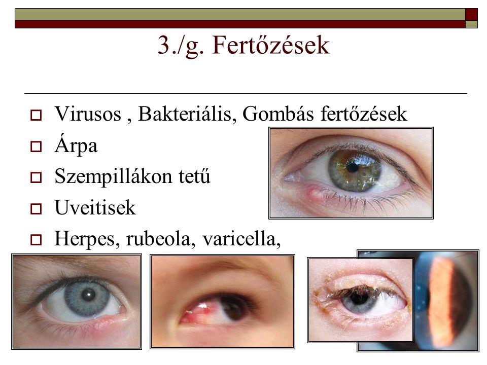 3./g. Fertőzések  Virusos, Bakteriális, Gombás fertőzések  Árpa  Szempillákon tetű  Uveitisek  Herpes, rubeola, varicella,