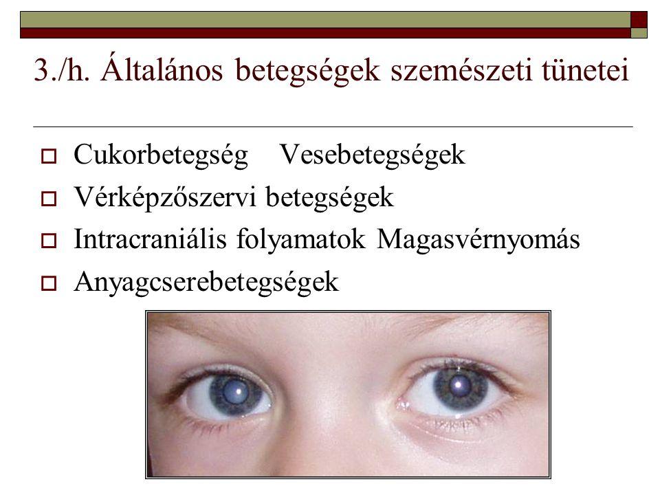 3./h. Általános betegségek szemészeti tünetei  Cukorbetegség Vesebetegségek  Vérképzőszervi betegségek  Intracraniális folyamatok Magasvérnyomás 