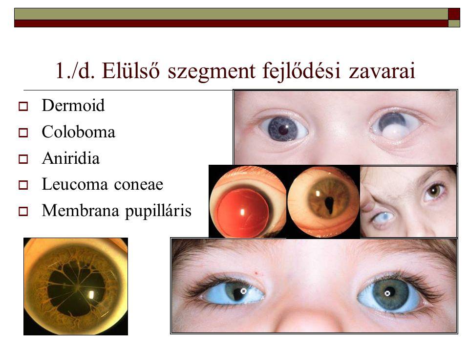 Aniridia szivárványhártya hiány  Fénykerülés, könnyezés  Súlyos látáskárosodás  Nystagmussal, cataractával is járhat  Szemnyomásemelkedés  Szaruhomály is felléphet  Visus 0,1-0,15  Napszemüveg-blendézett kontaktlencse segít  Maximális correctió kell