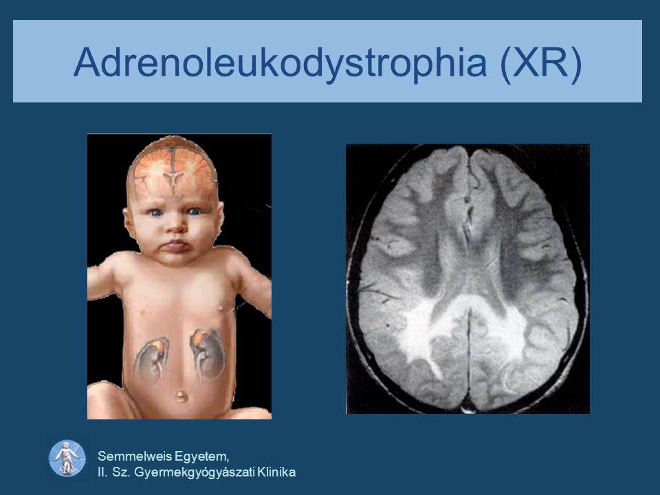Semmelweis Egyetem, II. Sz. Gyermekgyógyászati Klinika Adrenoleukodystrophia (XR)