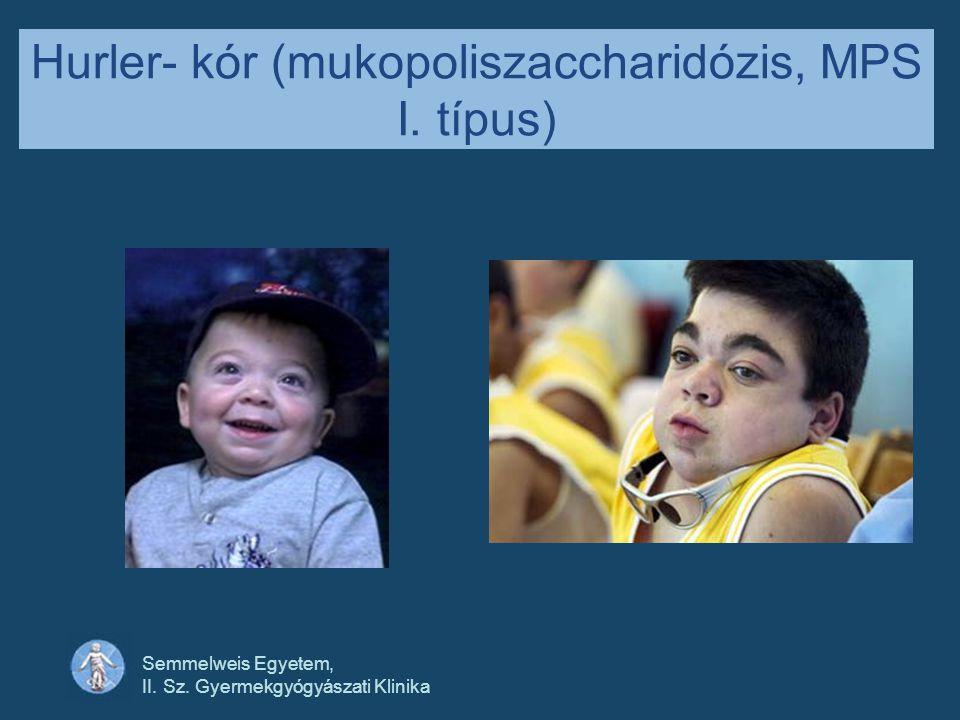 Semmelweis Egyetem, II. Sz. Gyermekgyógyászati Klinika Hurler- kór (mukopoliszaccharidózis, MPS I. típus)