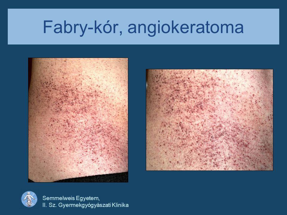 Semmelweis Egyetem, II. Sz. Gyermekgyógyászati Klinika Fabry-kór, angiokeratoma