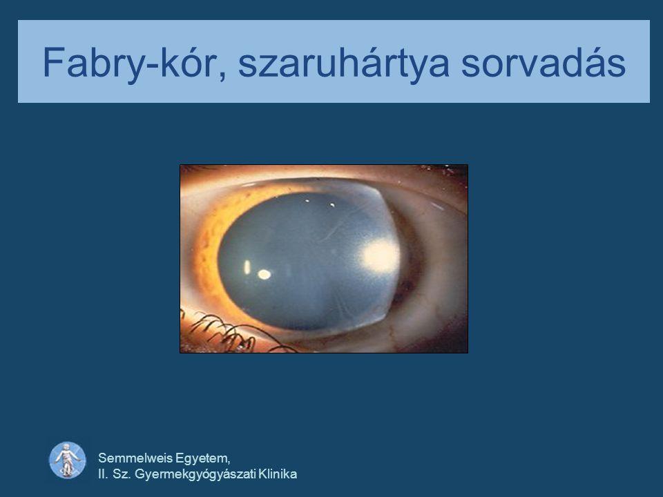 Semmelweis Egyetem, II. Sz. Gyermekgyógyászati Klinika Fabry-kór, szaruhártya sorvadás