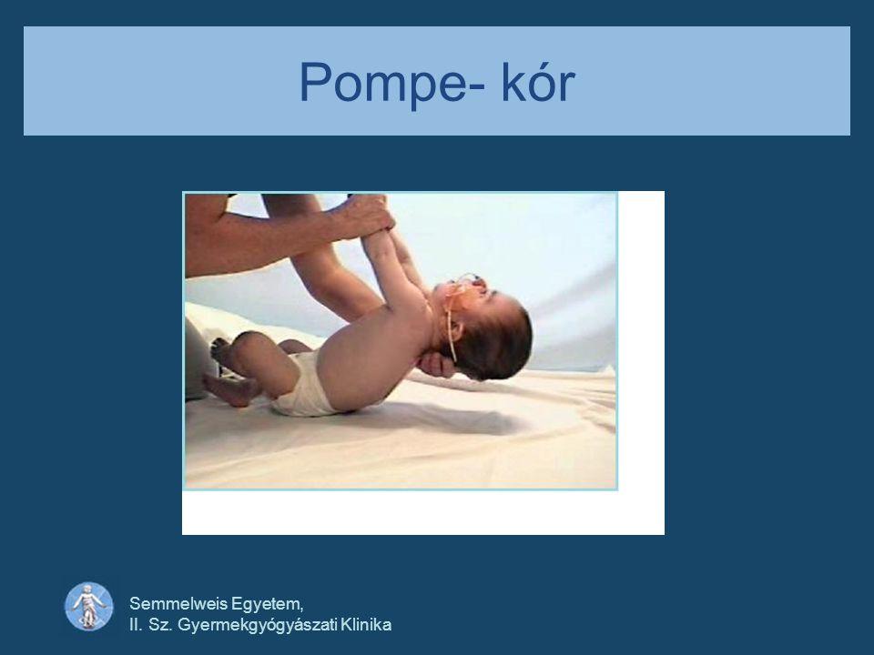 Semmelweis Egyetem, II. Sz. Gyermekgyógyászati Klinika Pompe- kór