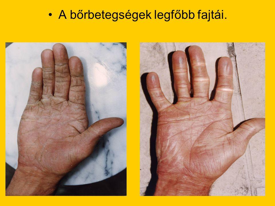 •A bőrbetegségek legfőbb fajtái.