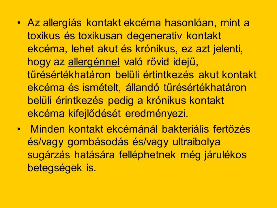 •Az allergiás kontakt ekcéma hasonlóan, mint a toxikus és toxikusan degenerativ kontakt ekcéma, lehet akut és krónikus, ez azt jelenti, hogy az allerg