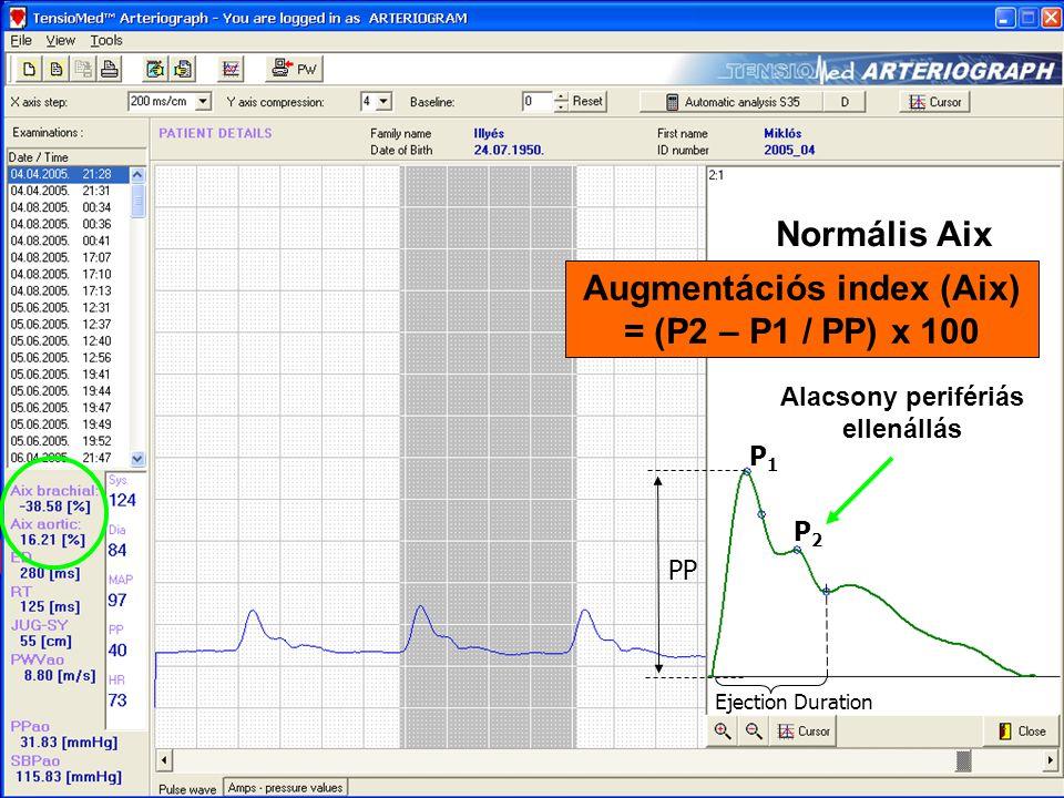 Normális Aix P2P2 P1P1 PP Ejection Duration Alacsony perifériás ellenállás Augmentációs index (Aix) = (P2 – P1 / PP) x 100