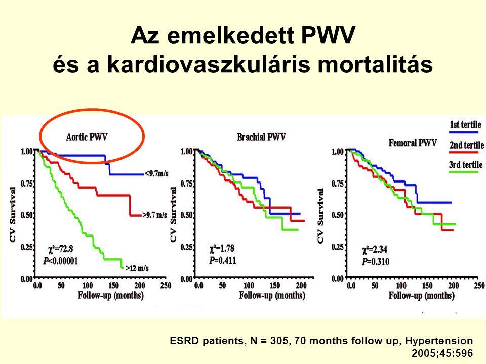 Az emelkedett PWV és a kardiovaszkuláris mortalitás ESRD patients, N = 305, 70 months follow up, Hypertension 2005;45:596