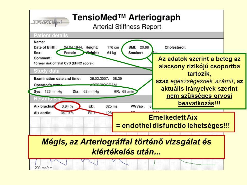 Mégis, az Arteriográffal történő vizsgálat és kiértékelés után... Emelkedett Aix = endothel disfunctio lehetséges!!! Az adatok szerint a beteg az alac