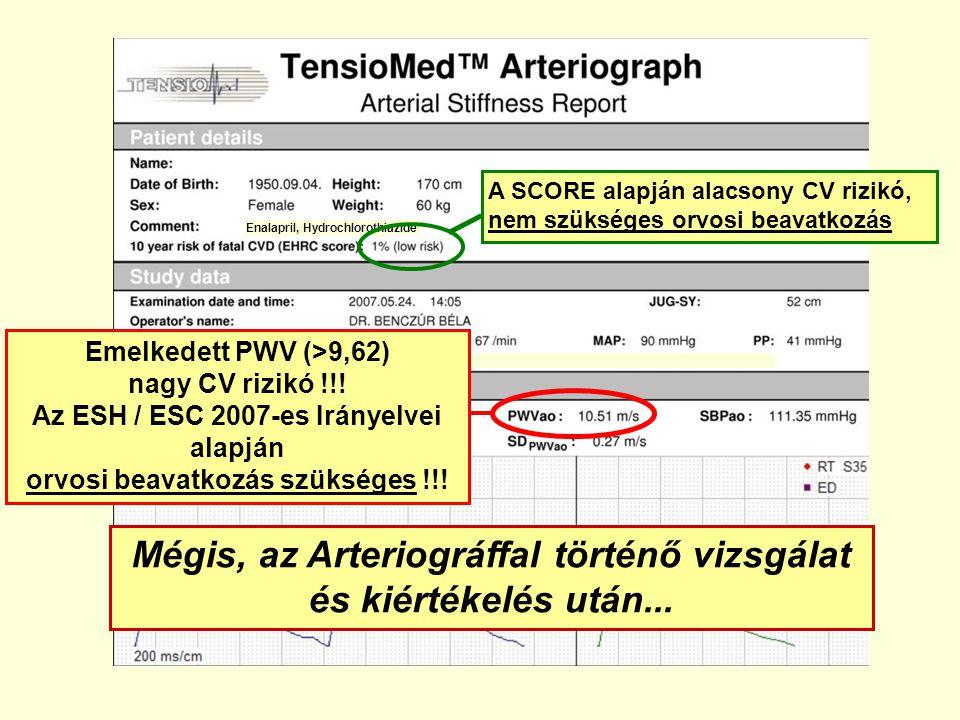 Mégis, az Arteriográffal történő vizsgálat és kiértékelés után... Emelkedett PWV (>9,62) nagy CV rizikó !!! Az ESH / ESC 2007-es Irányelvei alapján or