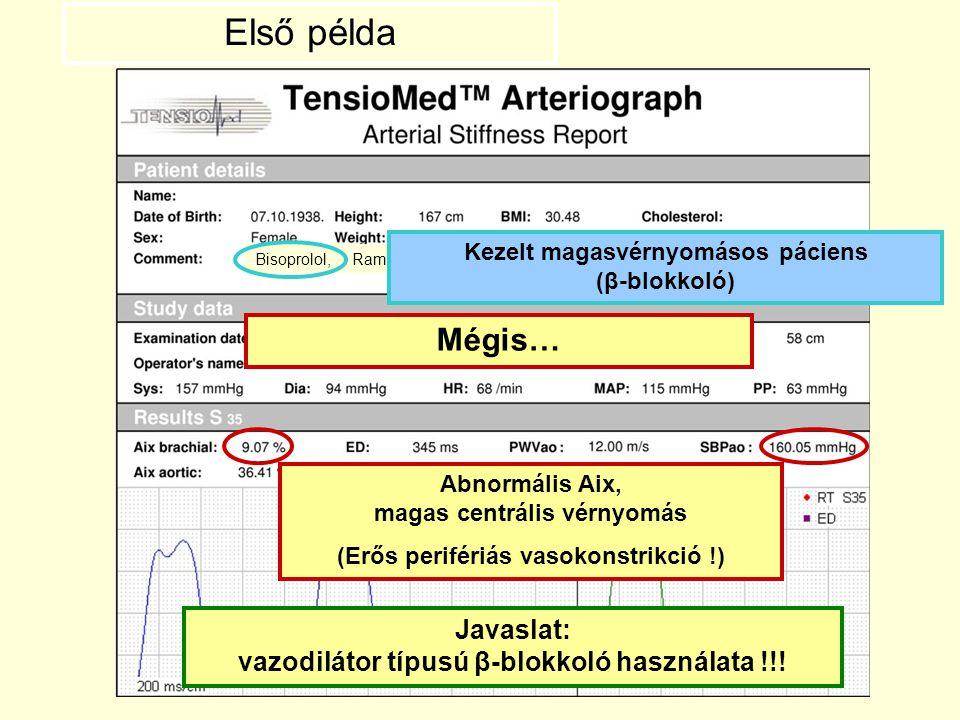 Bisoprolol, Ramipril Abnormális Aix, magas centrális vérnyomás (Erős perifériás vasokonstrikció !) Első példa Javaslat: vazodilátor típusú β-blokkoló
