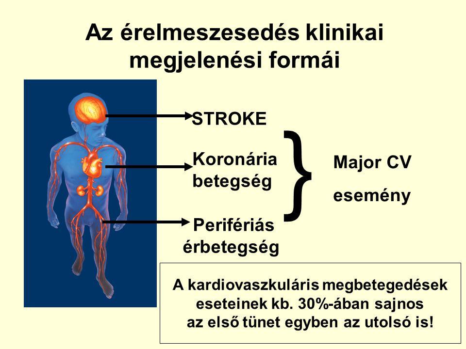 Az érelmeszesedés klinikai megjelenési formái STROKE Koronária betegség Perifériás érbetegség } Major CV esemény A kardiovaszkuláris megbetegedések es