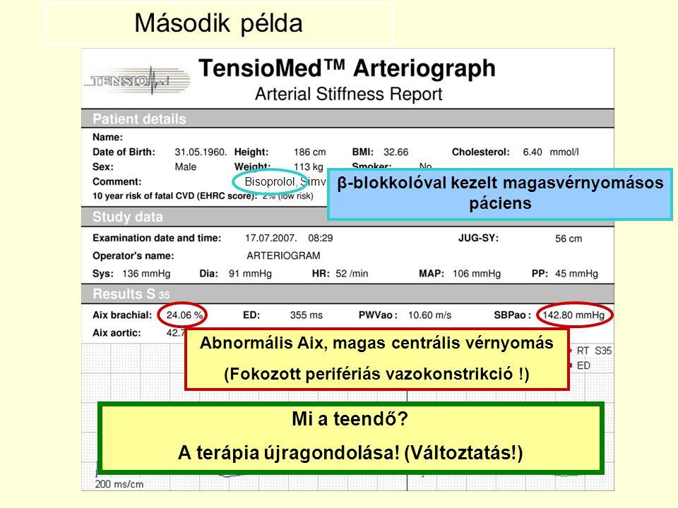 Bisoprolol, Simvastatin β-blokkolóval kezelt magasvérnyomásos páciens Abnormális Aix, magas centrális vérnyomás (Fokozott perifériás vazokonstrikció !