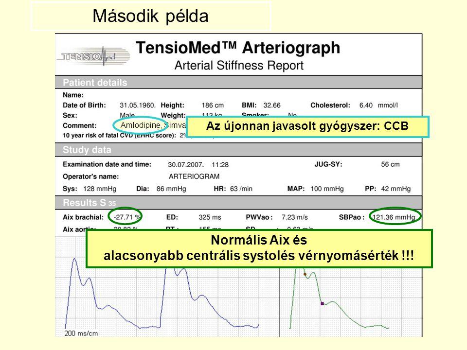 Amlodipine, Simvastatin Az újonnan javasolt gyógyszer: CCB Normális Aix és alacsonyabb centrális systolés vérnyomásérték !!! Második példa