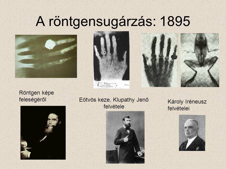 A röntgensugárzás: 1895 Röntgen képe feleségéről Eötvös keze, Klupathy Jenő felvétele Károly Iréneusz felvételei