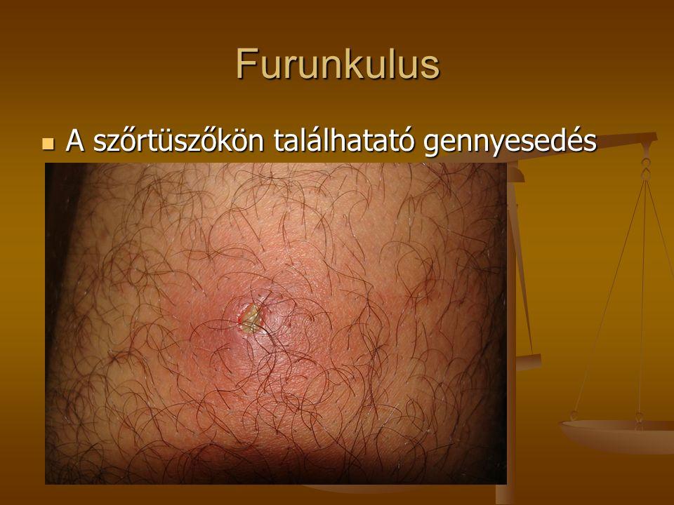 Ekcéma  a bőr krónikus, gyulladásos, az immunműködés egyensúlyának zavara miatt kialakuló betegsége
