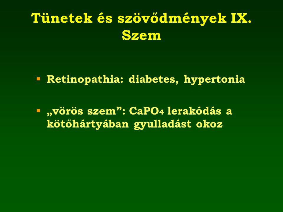 """Tünetek és szövődmények IX. Szem  Retinopathia: diabetes, hypertonia  """"vörös szem"""": CaPO 4 lerakódás a kötőhártyában gyulladást okoz"""