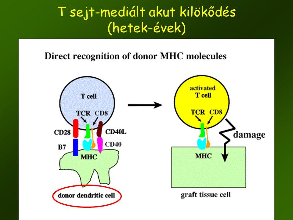 13 T sejt-mediált akut kilökődés (hetek-évek)