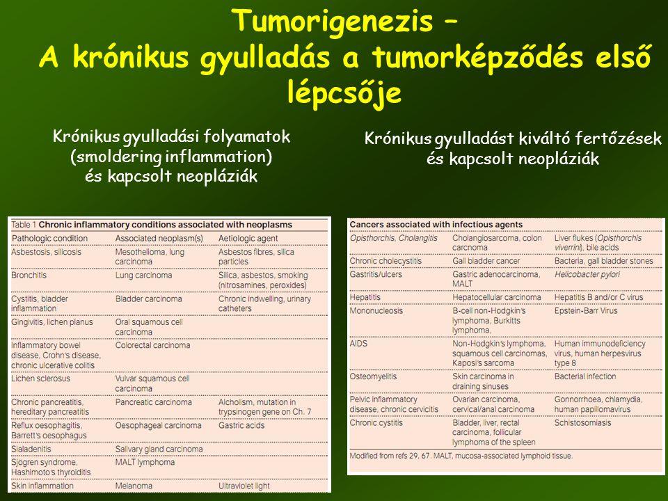 34 Tumorigenezis – A krónikus gyulladás a tumorképződés első lépcsője Krónikus gyulladási folyamatok (smoldering inflammation) és kapcsolt neopláziák