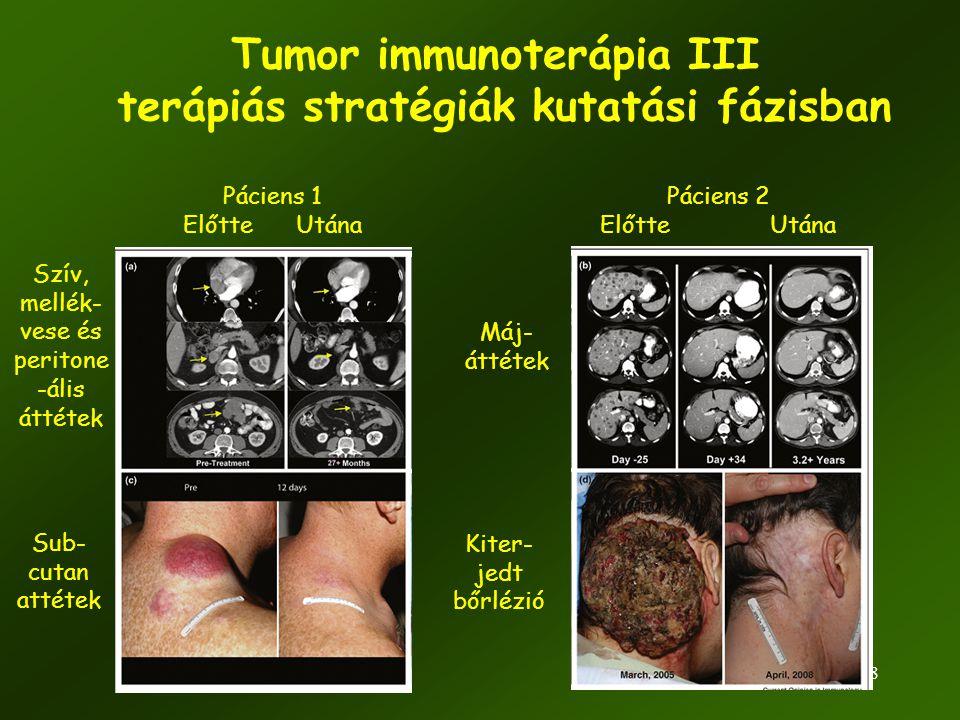 58 Tumor immunoterápia III terápiás stratégiák kutatási fázisban Páciens 1 Előtte Utána Páciens 2 Előtte Utána Szív, mellék- vese és peritone -ális át