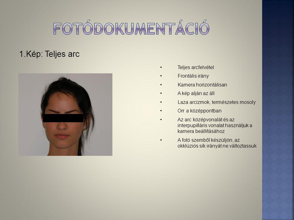 1.Kép: Teljes arc •Teljes arcfelvétel •Frontális irány •Kamera horizontálisan •A kép alján az áll •Laza arcizmok, természetes mosoly •Orr a középpontb
