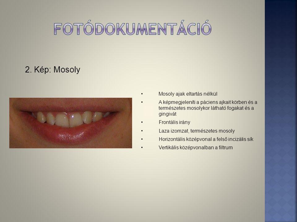 2. Kép: Mosoly •Mosoly ajak eltartás nélkül •A képmegjeleníti a páciens ajkait körben és a természetes mosolykor látható fogakat és a gingivát •Frontá