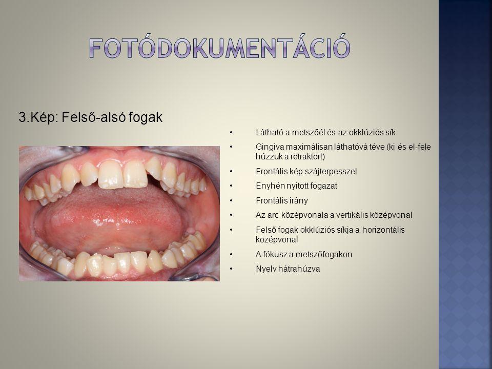 3.Kép: Felső-alsó fogak •Látható a metszőél és az okklúziós sík •Gingiva maximálisan láthatóvá téve (ki és el-fele húzzuk a retraktort) •Frontális kép