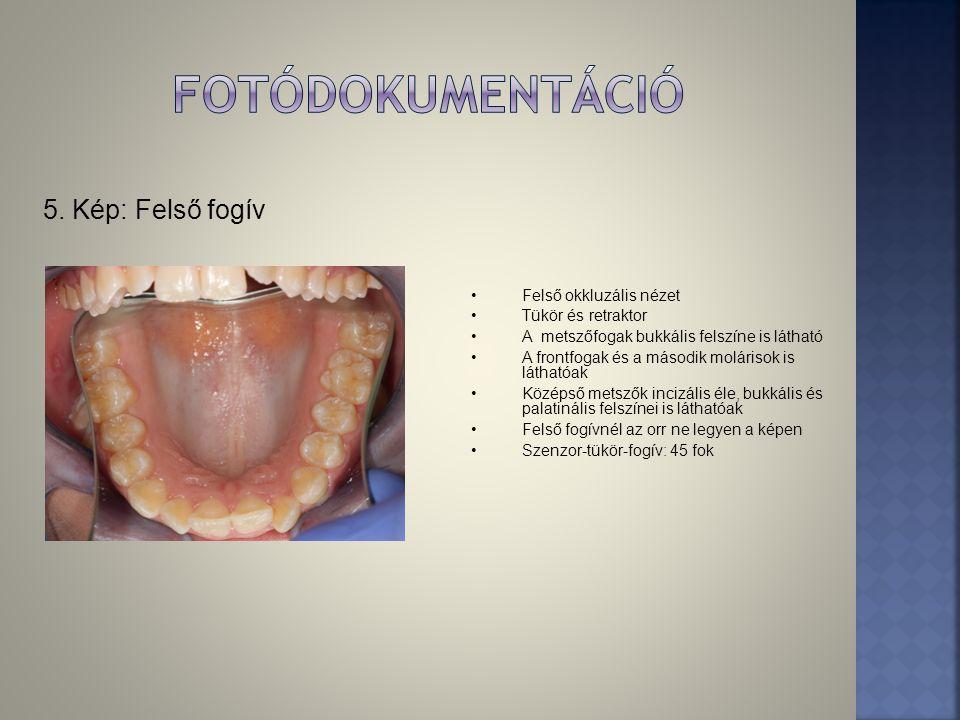 5. Kép: Felső fogív •Felső okkluzális nézet •Tükör és retraktor •A metszőfogak bukkális felszíne is látható •A frontfogak és a második molárisok is lá