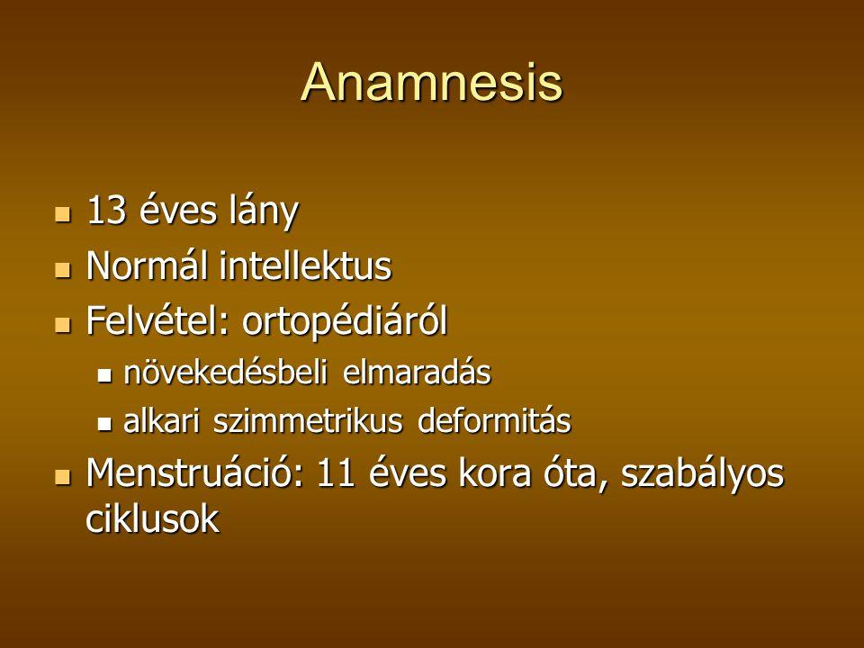 Anamnesis  13 éves lány  Normál intellektus  Felvétel: ortopédiáról  növekedésbeli elmaradás  alkari szimmetrikus deformitás  Menstruáció: 11 éves kora óta, szabályos ciklusok