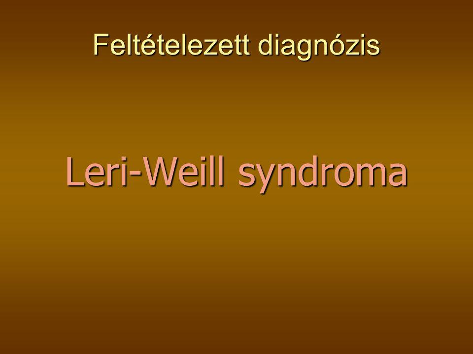 Feltételezett diagnózis Leri-Weill syndroma