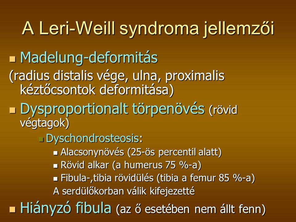 A Leri-Weill syndroma jellemzői  Madelung-deformitás (radius distalis vége, ulna, proximalis kéztőcsontok deformitása)  Dysproportionalt törpenövés (rövid végtagok)  Dyschondrosteosis:  Alacsonynövés (25-ös percentil alatt)  Rövid alkar (a humerus 75 %-a)  Fibula-,tibia rövidülés (tibia a femur 85 %-a) A serdülőkorban válik kifejezetté  Hiányzó fibula (az ő esetében nem állt fenn)