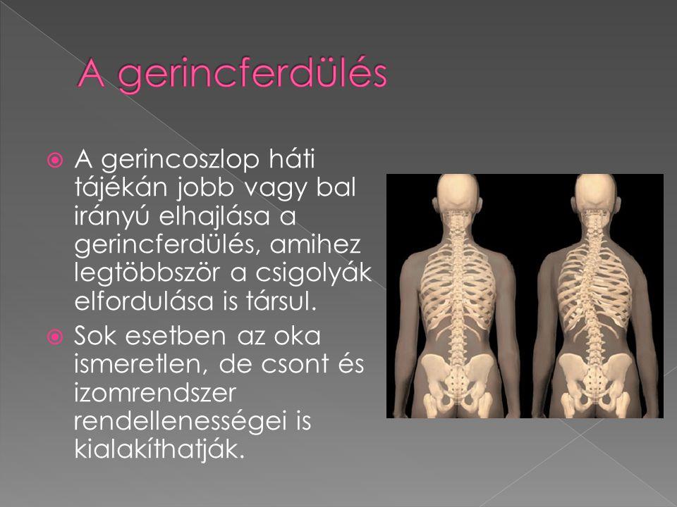  A gerincoszlop háti tájékán jobb vagy bal irányú elhajlása a gerincferdülés, amihez legtöbbször a csigolyák elfordulása is társul.  Sok esetben az