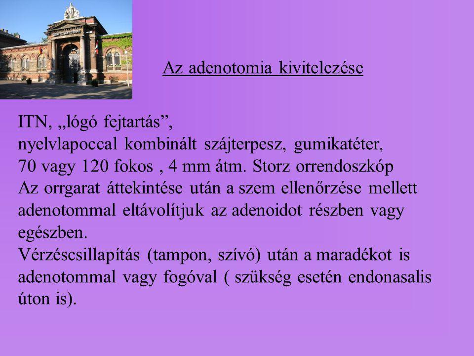 """Az adenotomia kivitelezése ITN, """"lógó fejtartás"""", nyelvlapoccal kombinált szájterpesz, gumikatéter, 70 vagy 120 fokos, 4 mm átm. Storz orrendoszkóp Az"""