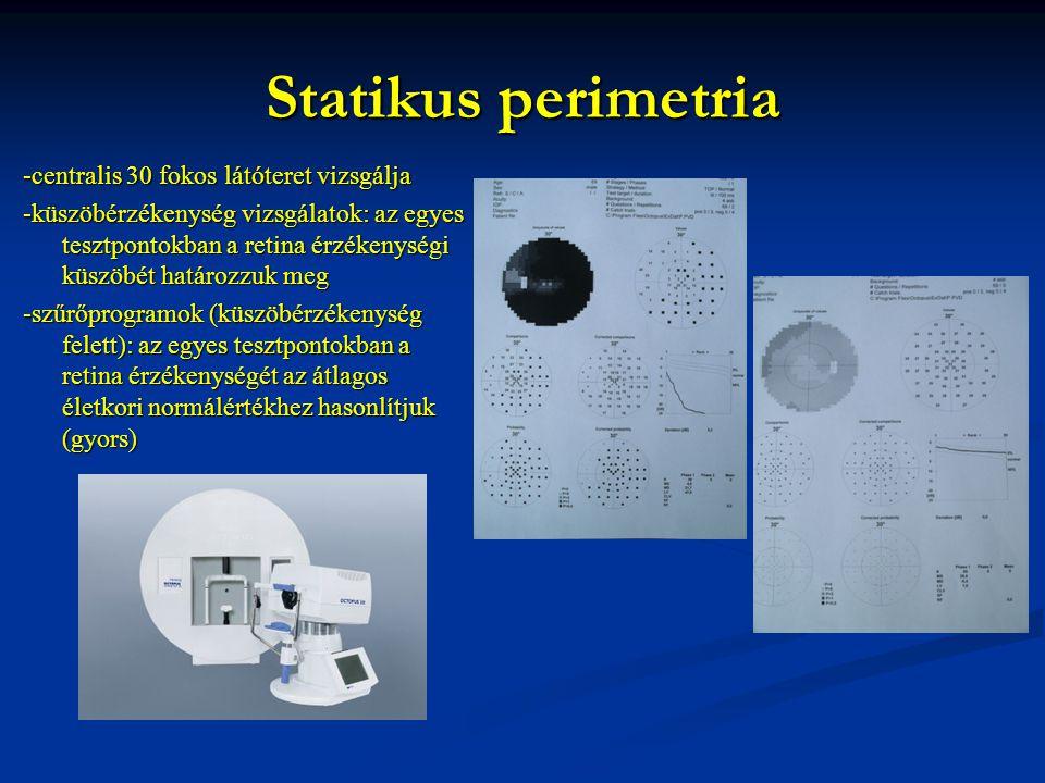 Statikus perimetria -centralis 30 fokos látóteret vizsgálja -küszöbérzékenység vizsgálatok: az egyes tesztpontokban a retina érzékenységi küszöbét határozzuk meg -szűrőprogramok (küszöbérzékenység felett): az egyes tesztpontokban a retina érzékenységét az átlagos életkori normálértékhez hasonlítjuk (gyors)