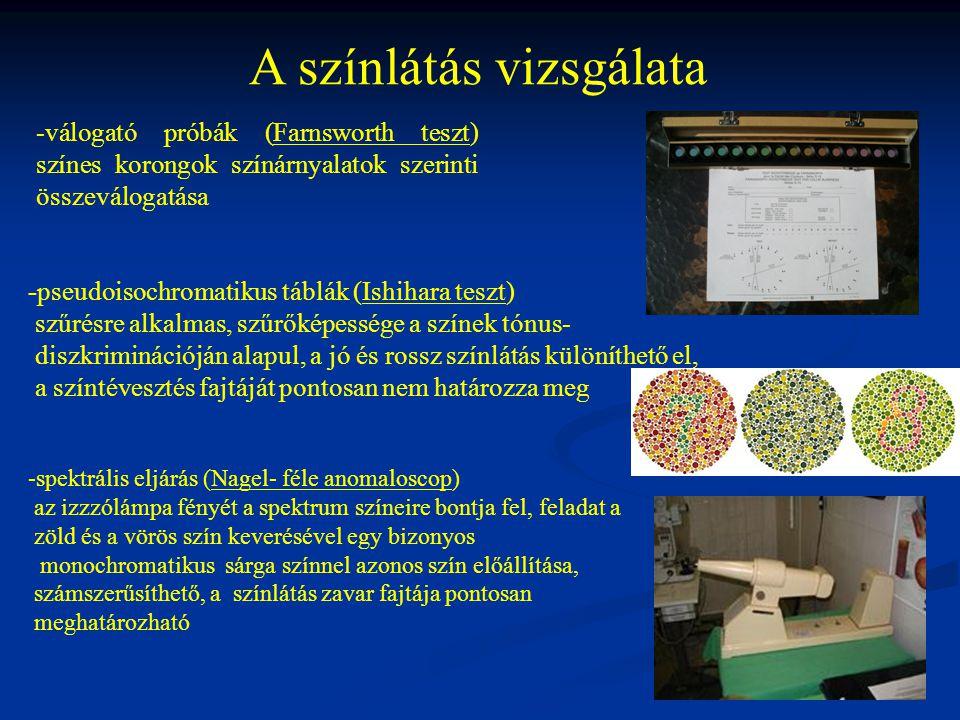 A színlátás vizsgálata -válogató próbák (Farnsworth teszt) színes korongok színárnyalatok szerinti összeválogatása -pseudoisochromatikus táblák (Ishihara teszt) szűrésre alkalmas, szűrőképessége a színek tónus- diszkriminációján alapul, a jó és rossz színlátás különíthető el, a színtévesztés fajtáját pontosan nem határozza meg -spektrális eljárás (Nagel- féle anomaloscop) az izzzólámpa fényét a spektrum színeire bontja fel, feladat a zöld és a vörös szín keverésével egy bizonyos monochromatikus sárga színnel azonos szín előállítása, számszerűsíthető, a színlátás zavar fajtája pontosan meghatározható