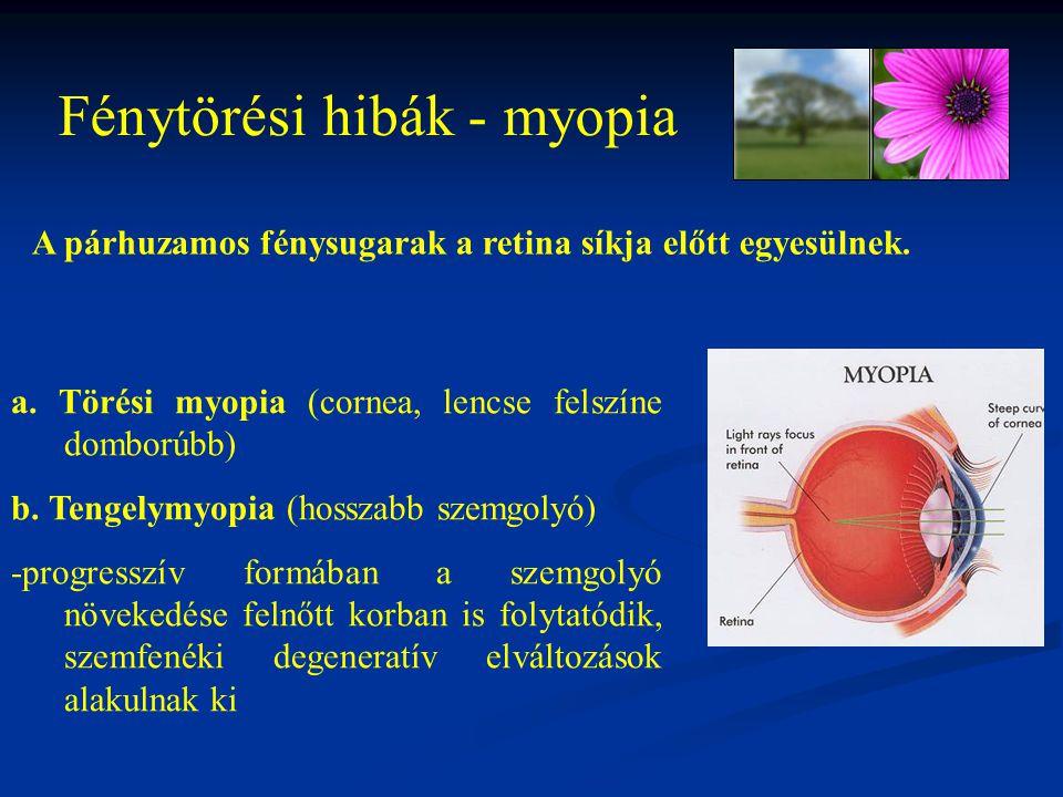 Fénytörési hibák - myopia a. Törési myopia (cornea, lencse felszíne domborúbb) b. Tengelymyopia (hosszabb szemgolyó) -progresszív formában a szemgolyó