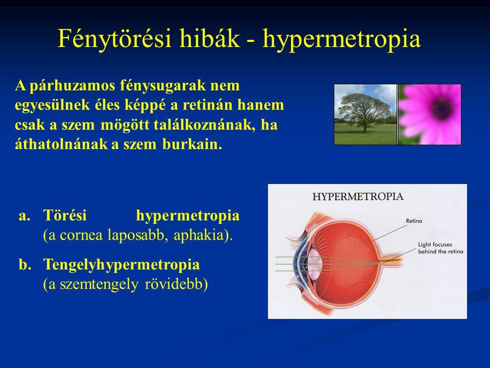Fénytörési hibák - hypermetropia a.Törési hypermetropia (a cornea laposabb, aphakia). b.Tengelyhypermetropia (a szemtengely rövidebb) A párhuzamos fén