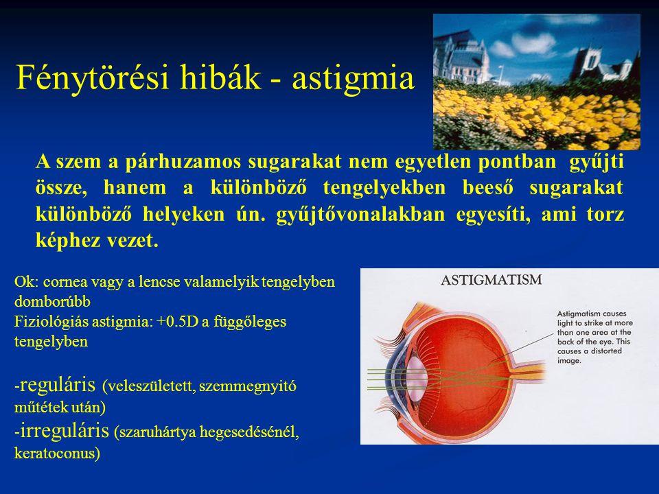 Fénytörési hibák - astigmia A szem a párhuzamos sugarakat nem egyetlen pontban gyűjti össze, hanem a különböző tengelyekben beeső sugarakat különböző
