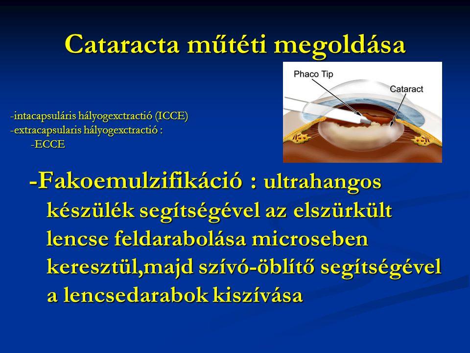Cataracta műtéti megoldása -Fakoemulzifikáció : ultrahangos készülék segítségével az elszürkült lencse feldarabolása microseben keresztül,majd szívó-öblítő segítségével a lencsedarabok kiszívása -intacapsuláris hályogexctractió (ICCE) -extracapsularis hályogexctractió : -ECCE -ECCE