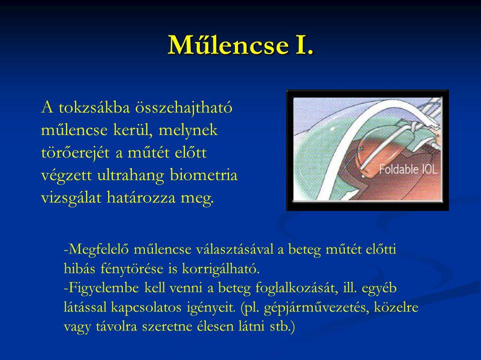 Műlencse I. A tokzsákba összehajtható műlencse kerül, melynek törőerejét a műtét előtt végzett ultrahang biometria vizsgálat határozza meg. -Megfelelő