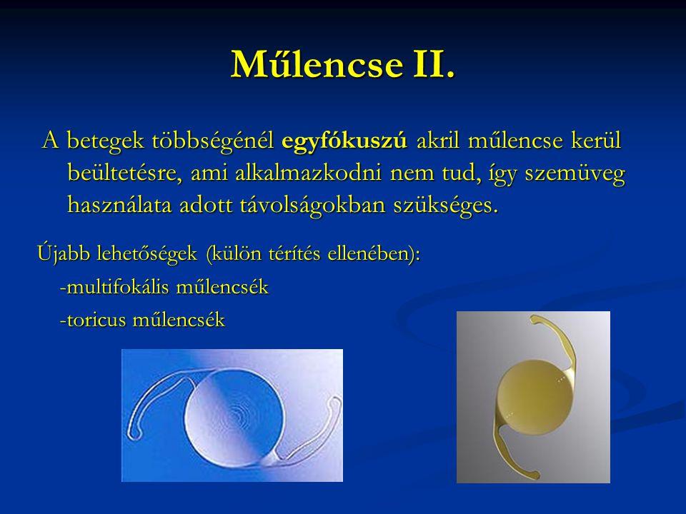 Műlencse II. A betegek többségénél egyfókuszú akril műlencse kerül beültetésre, ami alkalmazkodni nem tud, így szemüveg használata adott távolságokban